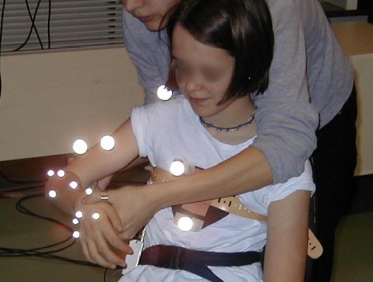 The picture shows a little girl with spherical, reflective markers on her hand, forearm, upper arm and chest.