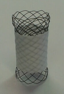 Figure 1: Hand-braided stent with partially nonwoven cover